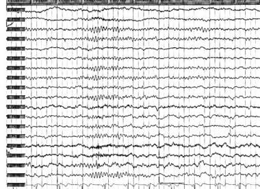 Preoperative EEG in a patient with a right tempora