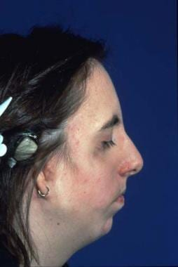 Preoperative appearance of patient with Treacher C