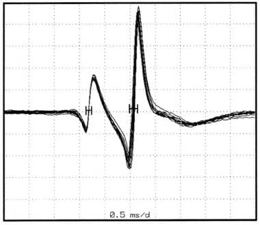 Single-fiber electromyography. Action potentials r