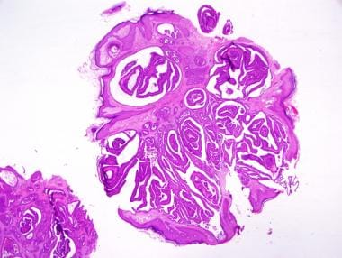 Figure 11a (20x): Nipple adenoma. This example sho
