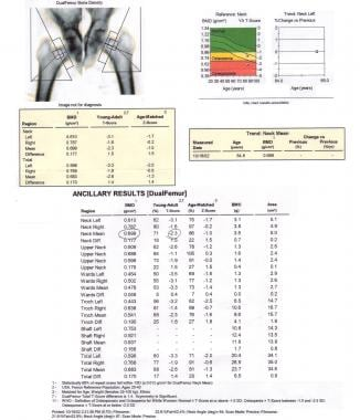 Sample results from a workup for osteoporosis usin