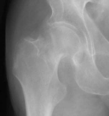 Radiograph depicting a Garden III hip fracture.