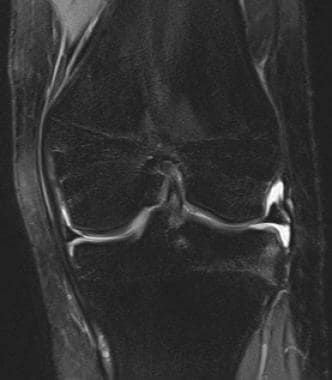 Normal anterior cruciate ligament (ACL) in coronal