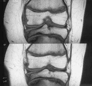 Adolescent Blount disease. Coronal T1-weighted MRI
