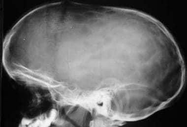 Sagittal synostosis. The anteroposterior (AP) diam