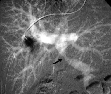 Carbon dioxide wedged hepatic venogram demonstrate