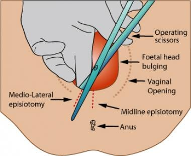 Incisions for mediolateral and midline (median) ep