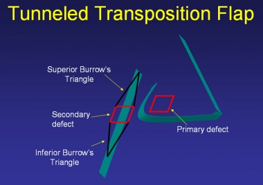 Tunneled transposition flap.