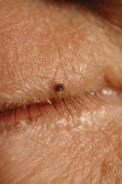 Focal melanoma of the upper lid in a patient with
