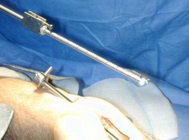 Endoscope is inserted in cannula attached to endos