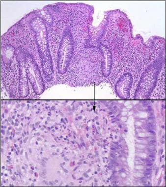 Colonic granuloma in patient with Crohn disease. H