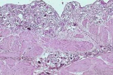 Schistosomiasis of the ureter.