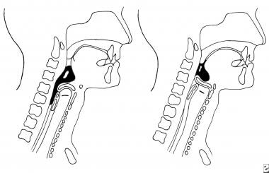 Pharyngeal phase of normal swallowing.