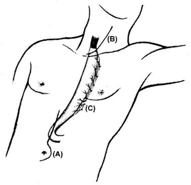 Transhiatal esophagectomy in which (a) is the abdo
