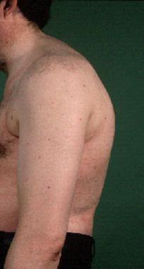 Patient with ankylosing spondylitis affecting cerv