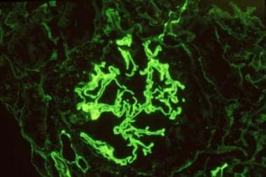 Immunofluorescence staining for immunoglobulin (Ig