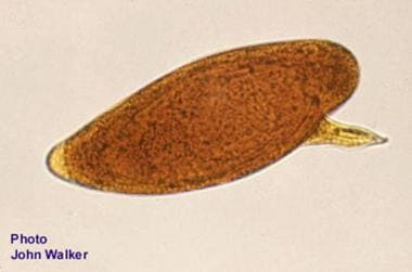 Egg of Schistosoma mansoni from a fecal smear.