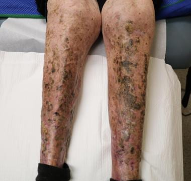 Erosive pustular dermatosis on the bilateral lower