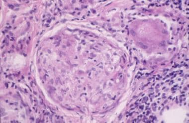 Histopathologic features of sarcoidosis showing th