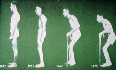 Ankylosing spondylitis disease progression. Courte