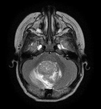 Axial T2 magnetic resonance image showing a cerebe