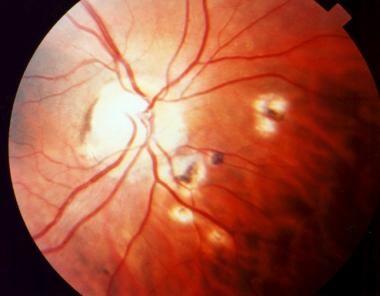 Peripapillary scars secondary to toxoplasmosis.
