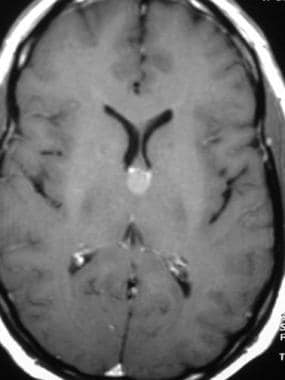 Axial contrast-enhanced T1-weighted magnetic reson
