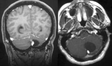 Brain imaging in hemangioblastoma overview computed for Cystic lesion with mural nodule