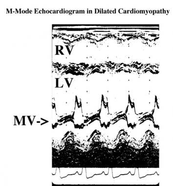 M-mode echocardiogram in a patient with dilated ca
