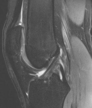 Normal anterior cruciate ligament (ACL) in sagitta