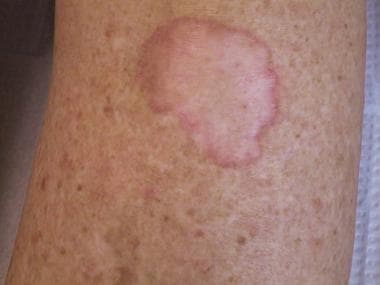 Porokeratosis of Mibelli on the lower leg in a ren