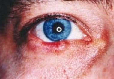 A 63-year-old white man with lower eyelid sebaceou