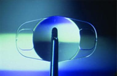 This phakic intraocular lens is fixated to the mid