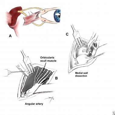 (A) In rare instances, the medial canthal tendon i