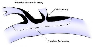 Possible incision for trapdoor aortotomy. Plaque a