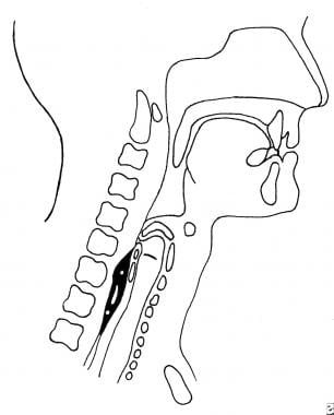 Esophageal phase of normal swallowing.