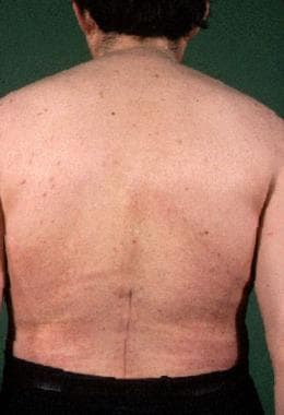 Posterior view of patient with ankylosing spondyli