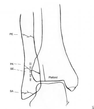 Diagram showing the typical locations for ankle fr