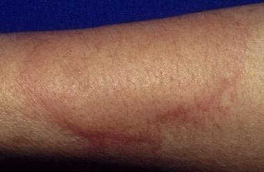 Urticaria, also known as hives or whelps, involves