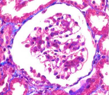 Glomerulus with mesangial hypercellularity and int