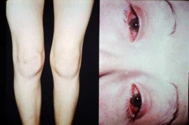 Reactive arthritis. Involvement of knee (left) and