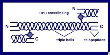 Deoxypyridinoline cross-linking in bone collagen.