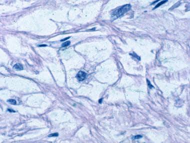 "Rhabdomyoma. Microscopy shows typical ""spider cell"