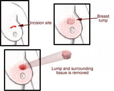 Lumpectomy.