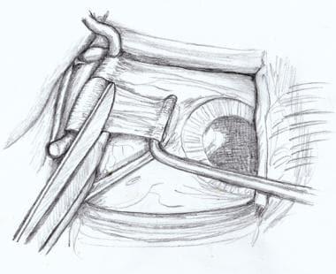 Westcott scissors cutting the anterior Tenon's cap