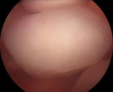 Endometrial polyp.