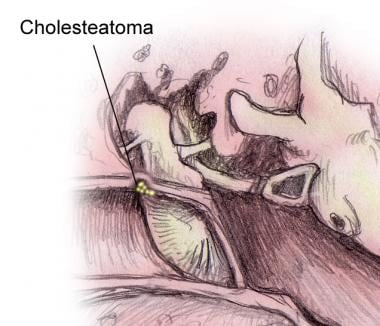 Cholesteatoma.