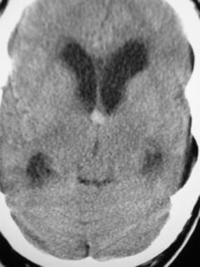 Computed tomography scan in a 65-year-old man who