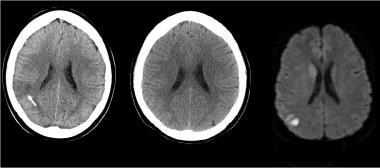 CT fogging effect: Axial noncontrast CT scan demon