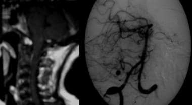 Left, T1-weighted gadolinium-enhanced MRI with an